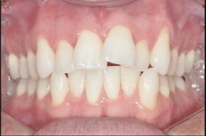 best-tooth-crowding-orthodontist-nyc-01