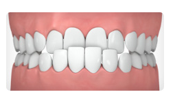 ortho-for-underbite-nyc-ny-04