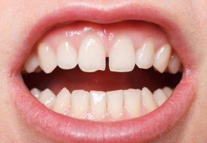 tooth-spacing-gapping-orthodontist-nyc-02