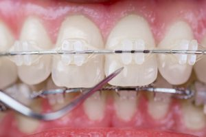 best-nyc-orthodontist-for-ceramic-braces-02