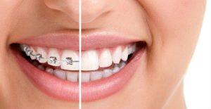 choosing-best-orthodontist-nyc-01