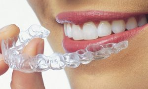 dentist-specialist-for-clear-aligners-04