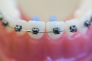 top-orthodontist-for-damon-braces-03