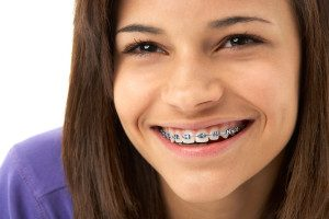 best-orthodontist-for-braces-nyc-03