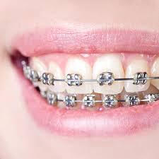 braces-for-underbite-best-orthodontist-nyc-02
