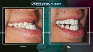 orthodontist-for-severe-underbite-options-top-nyc-expert-01