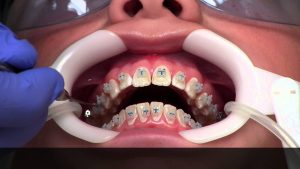 process-getting-braces-info-nyc-top-orthodintist-01