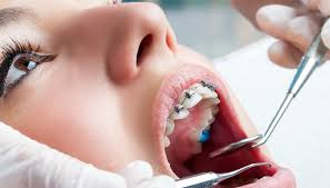 best-nyc-orthodontist-for-braces-general-information-03