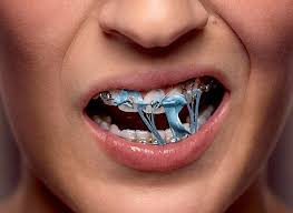 food-stuck-in-braces-invisalign-options-ortho-dentist-02