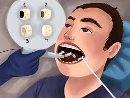 top-nyc-dentist-for-cavities-root-canal-02