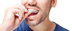 is-invisalgin-right-for-me-faq-info-orthodontist-nyc-01