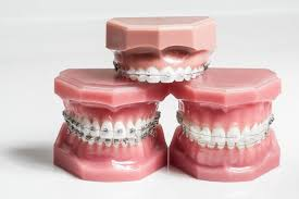 orthodontist-nyc-teeth-straightening-retainers-braces-info-03
