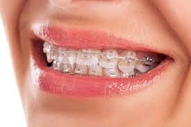 top-orthodontist-nyc-01