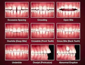 malocclusion-teeth-misalignment-nyc-orthodontic-specialists-02