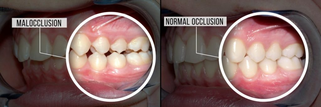 nyc-top-orthodontist-malocclusion-teeth-specialists-01