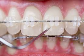 ceramic-braces-close-up-pic-general-information-02