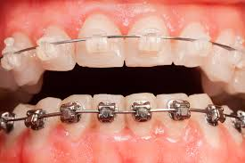 clear-vs-metal-braces-top-nyc-orthodontist-specialist-01