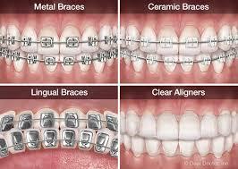 examples-modern-orthodontics-braces-03