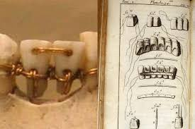 history-of-orthodontics-braces-02