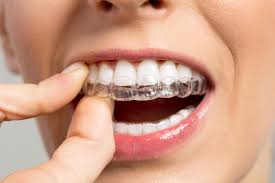 manhattan-orthodontist-clear-aligner-adult-braces-02