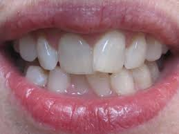 options-costs-straighten-teeth-info-01