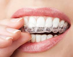straightenadult-teeth-invisalign-orthodontist-nyc-03