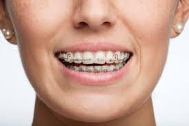 top-nyc-orthodontist-adult-orthodontics-braces-01