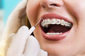 tradional-braces-adult-orthodontics-03