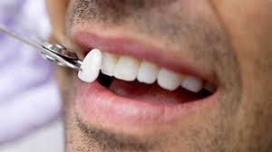 veneers-orthodontist-information-nyc-01