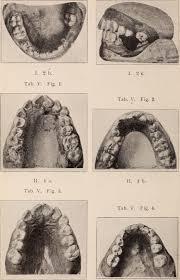 history-of-orthodontics-01