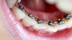 best-treatment-crooked-teeth-03