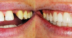causes-of-crooked-teeth-02