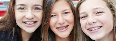 how-long-wear-braces-faq-top-ortho-nyc-01