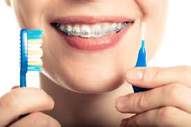 oral-hygeine-braces-orthodontics-03