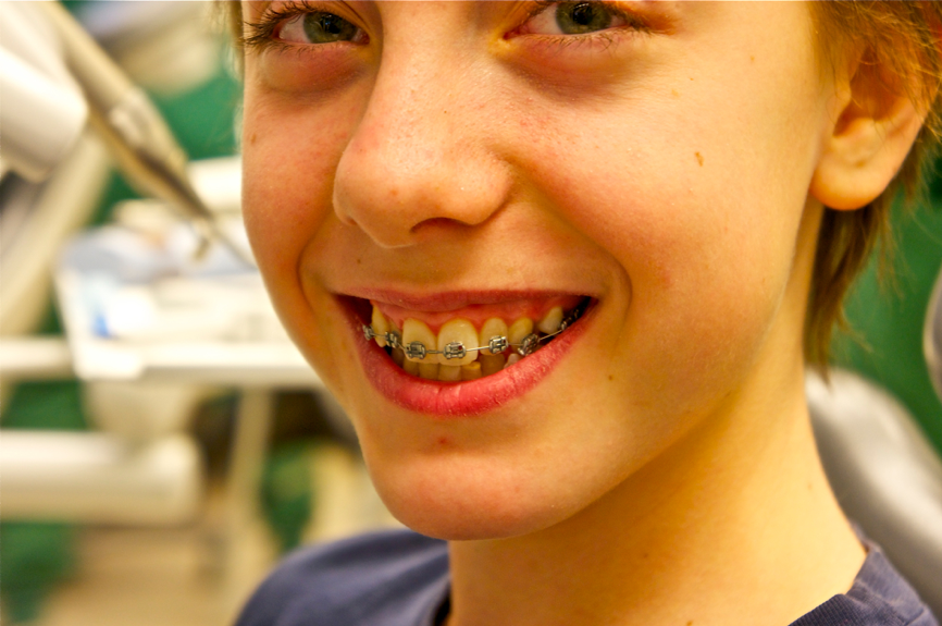 best-braces-for-children-nyc-orthodontist-01