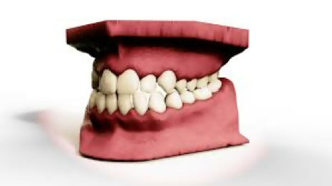 History of Orthodontics through time