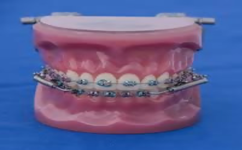 What is Accelerated Orthodontics?