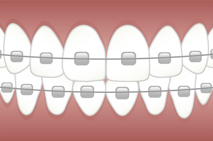 Ceramic Braces for the Teeth