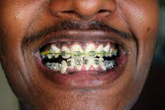 All About Adult Braces