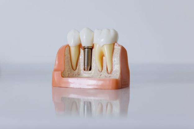 Tooth Anatomy & Common Problems