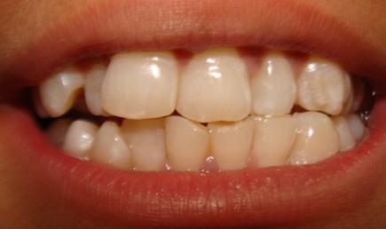 Fixing Crooked Teeth