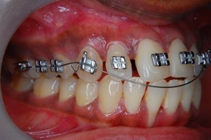 What Is Orthodontia? | Orthodontics
